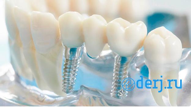 Услуги по имплантации зубов,  Калининград